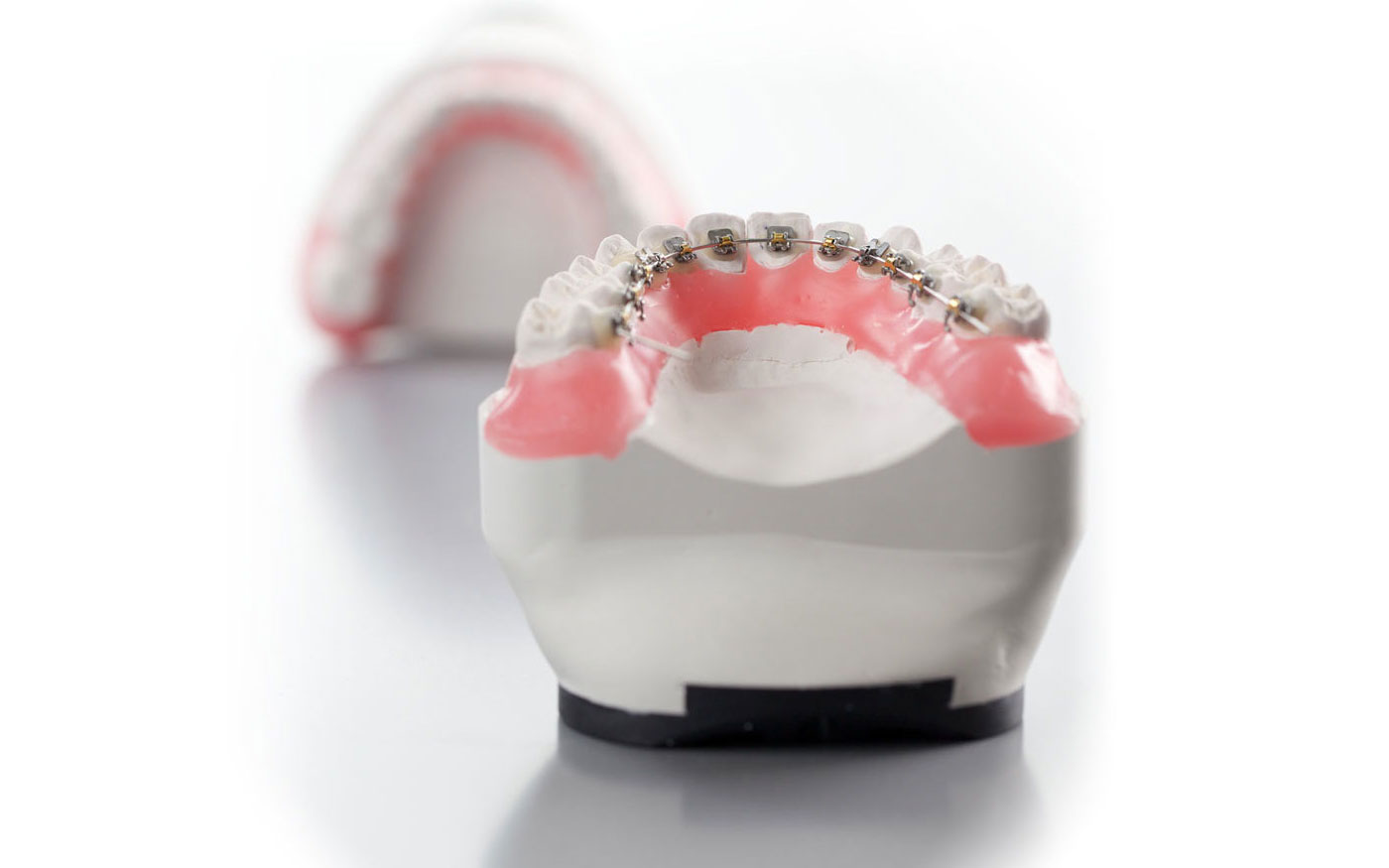 Secret Smile - Invisible Bracers